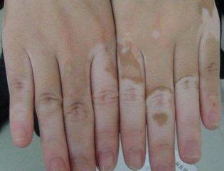 青少年患者怎样护理皮肤